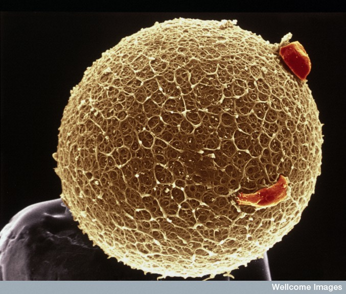 This microscopic image of a human egg is sitting on the point of a pin.   Credit: Wellcome Images via Flickr